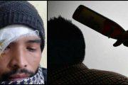 शादी से पहले मेंहदी में बवाल युवक के सिर पर फोड़ी बीयर की बोतल लगे 15 टांके...